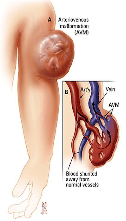 Vascular Malformations – Varicose Veins NYC | NJ Spider Veins